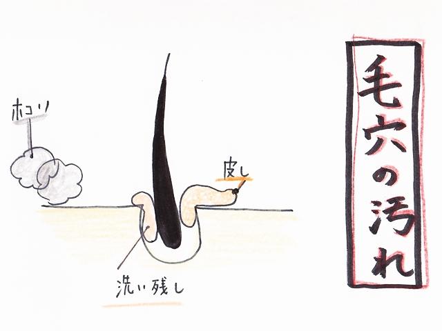 ニキビ3 640